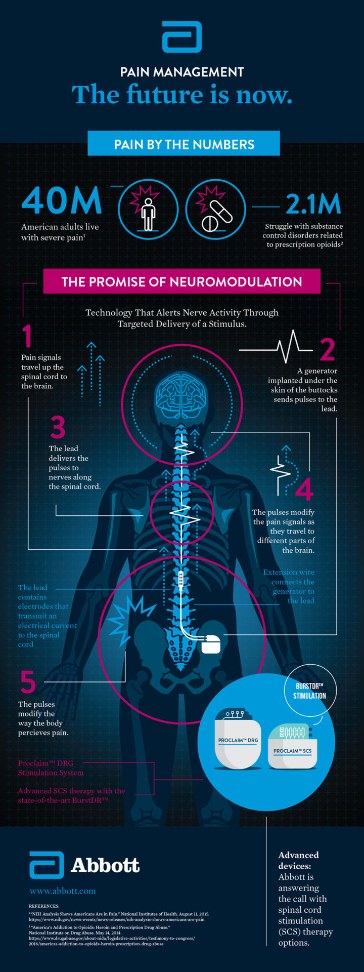 Infographic: Pain Management